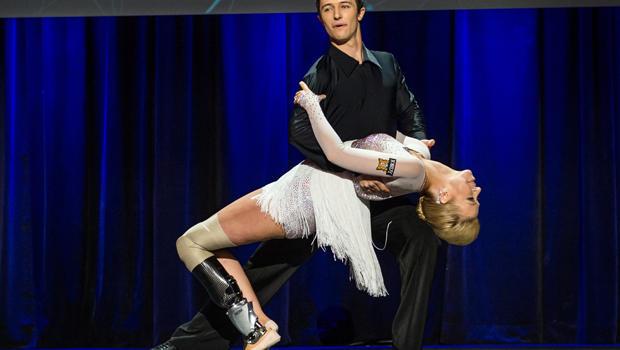danseuse jambe bionique